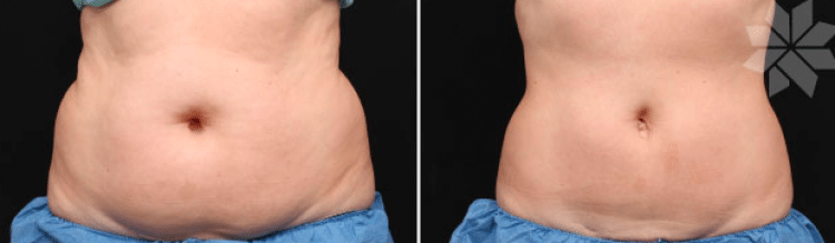 Coolsculpting-2-750x220