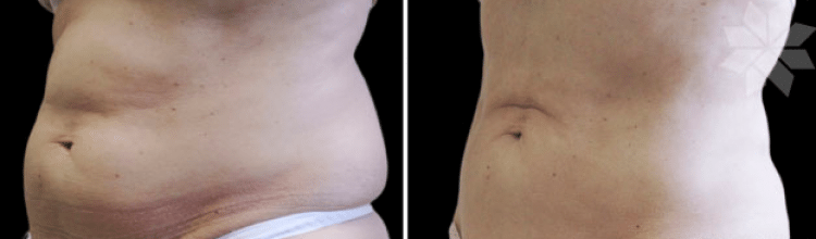 Coolsculpting-3-750x220